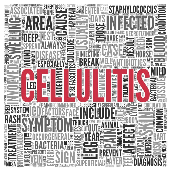 Treatments for Cellulitis
