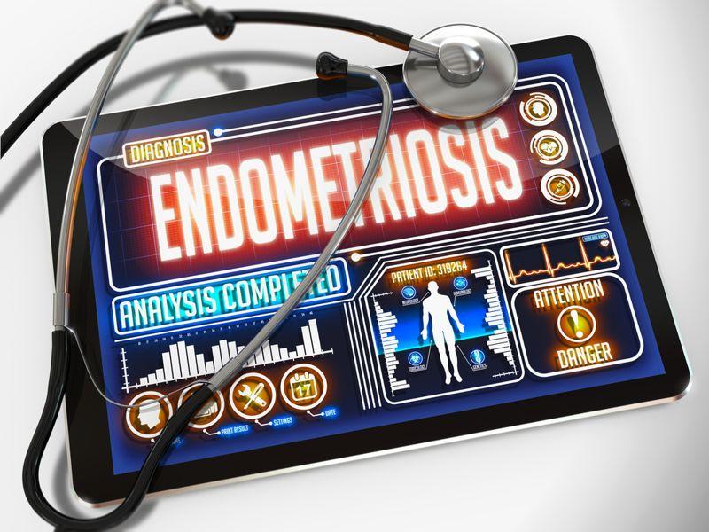endometriosis pelvic pain