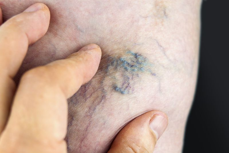 do i have thrombosis