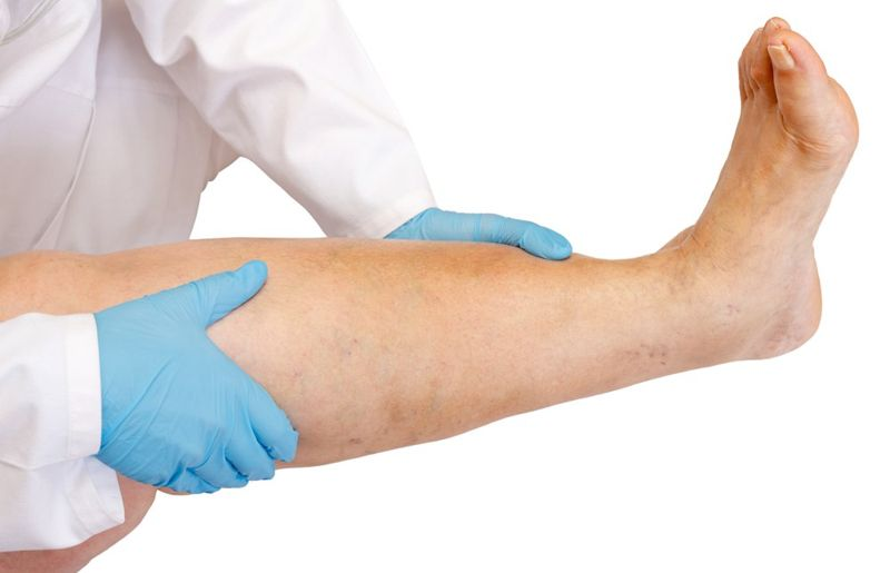 swelling deep vein thrombosis