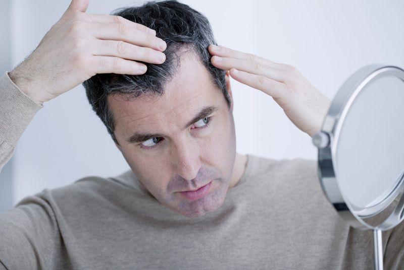 Top Causes of Hair Loss in Men