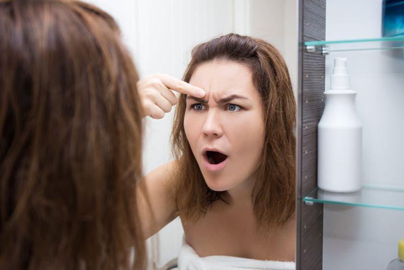 acne Polycystic Ovarian Syndrome