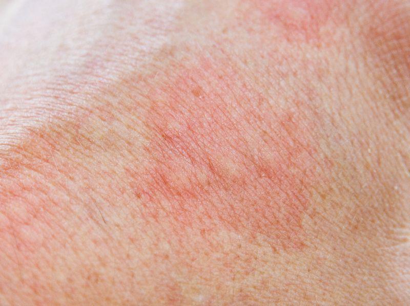 redness and warmth symptoms of bursitis
