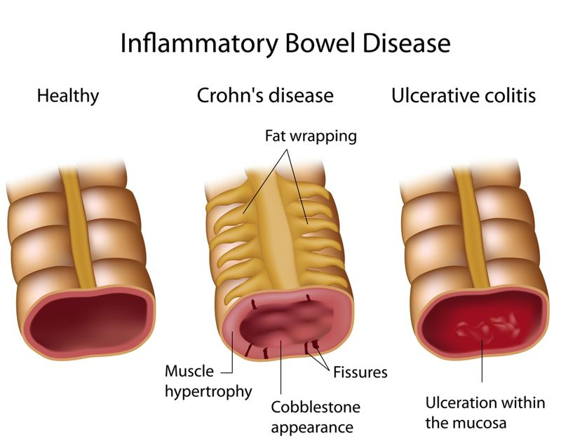 abdominal infections