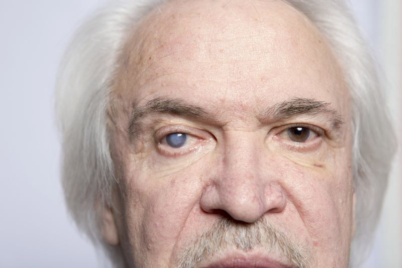 10 Symptoms of Cataracts: Know the Signs