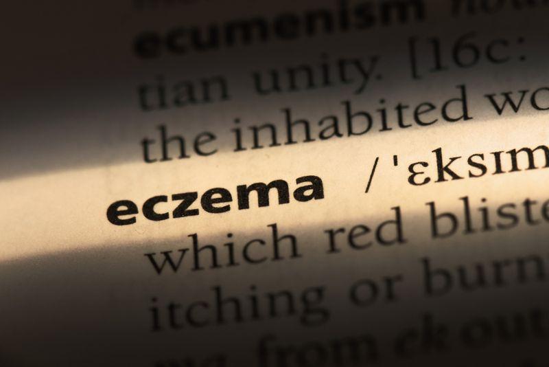 10 Treatments For Eczema