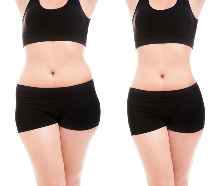 weight loss Myelodysplastic Syndrome