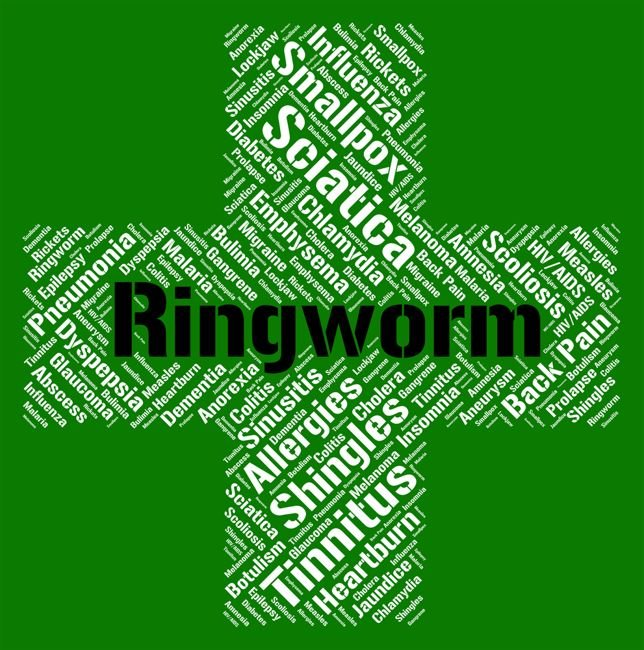 10 Treatments for Ringworm