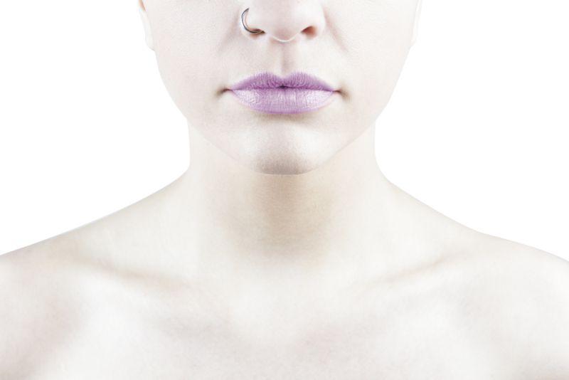 paleness Myelodysplastic Syndrome