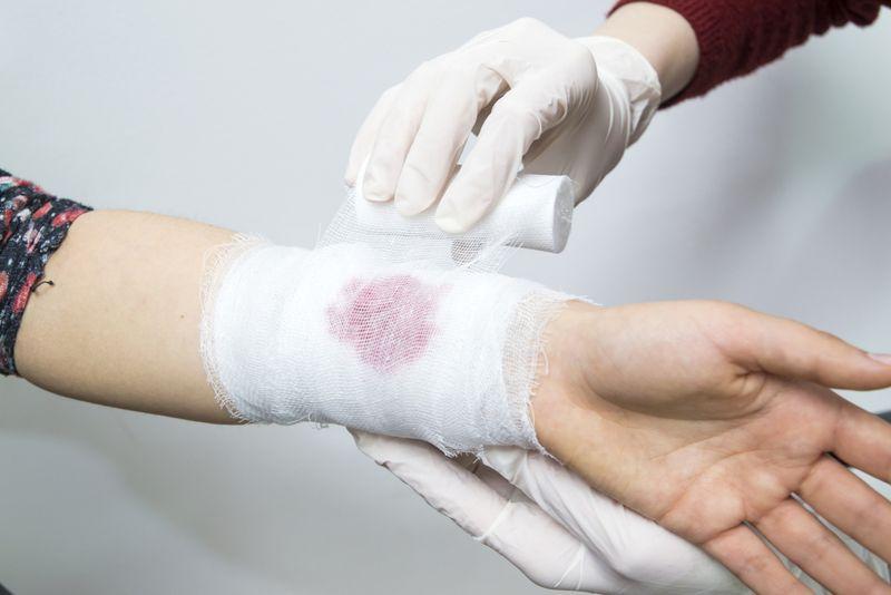 bleeding Myelodysplastic Syndrome