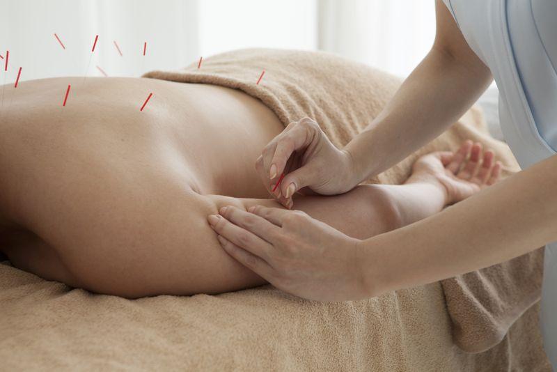 acupuncture sciatic