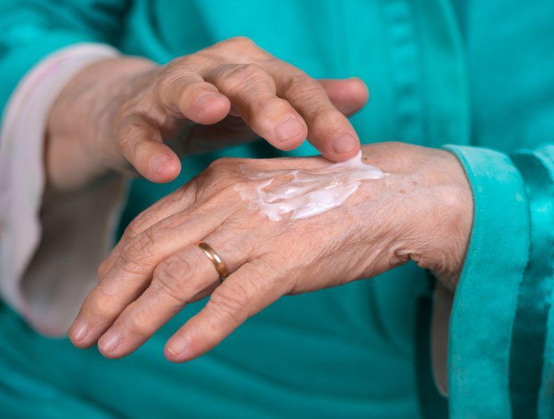 cream gel arthritis