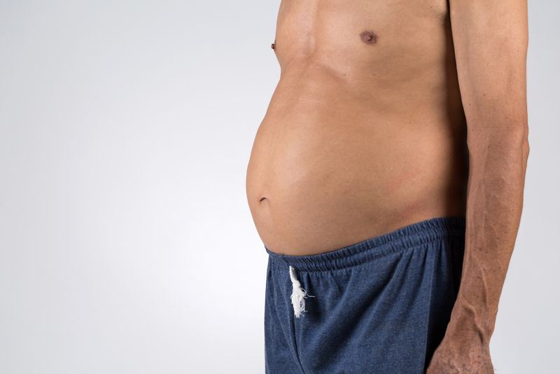bloated stomach lactose intolerance