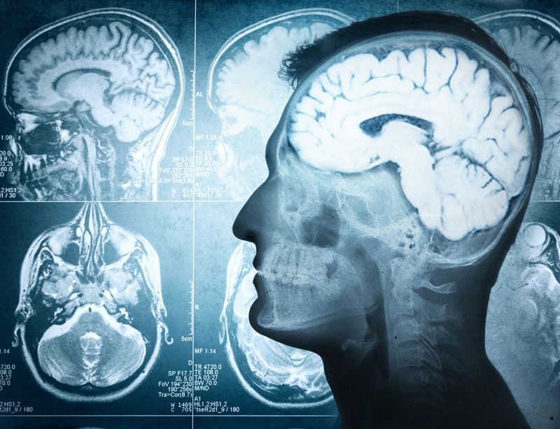 brain developing schizophrenia