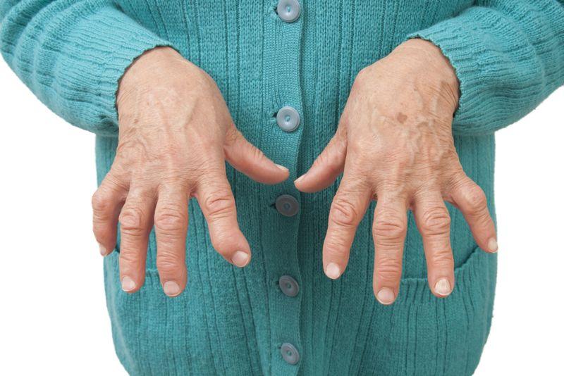 tendonitis medication