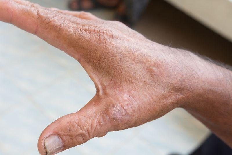 symptoms of scleroderma