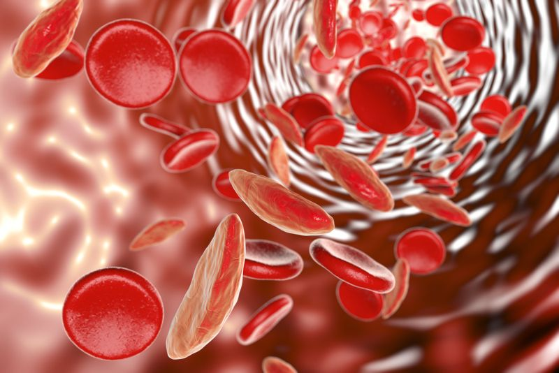 anemia colorectal cancer