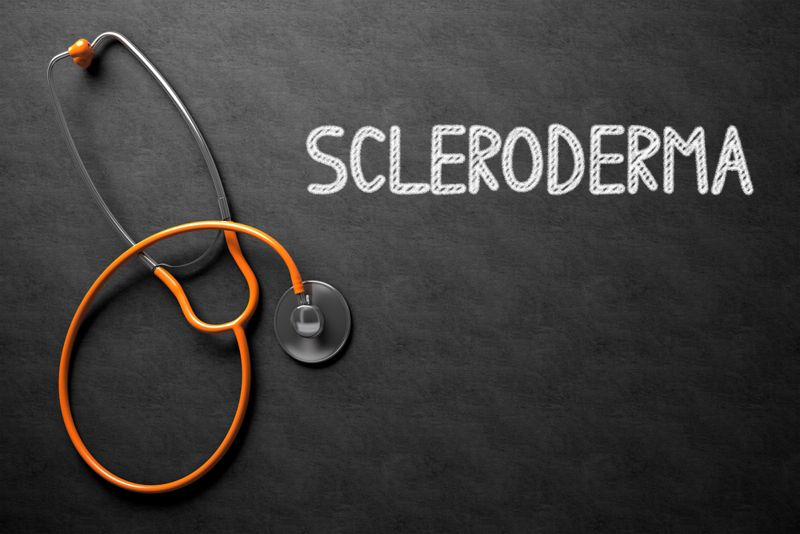 wounds scleroderma