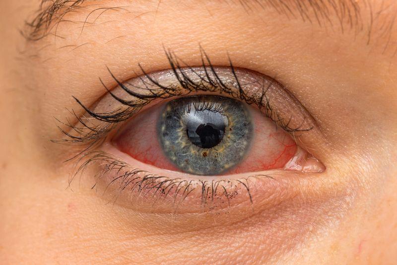 eye ankylosing spondylitis