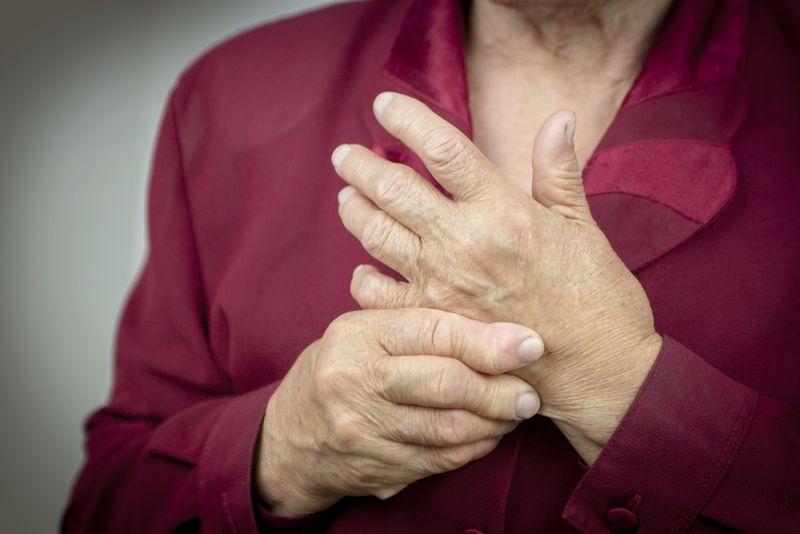 10 Signs of Rheumatoid Arthritis