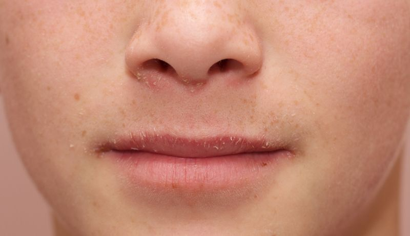 10 Remedies for Dry Mouth