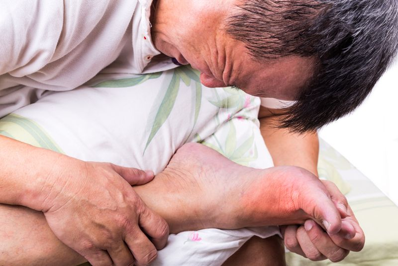 10 Remedies for Gout