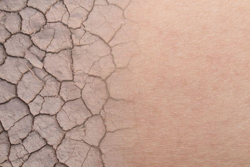 lymphoma dry skin