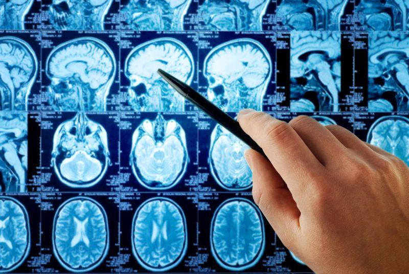 speech brain tumor