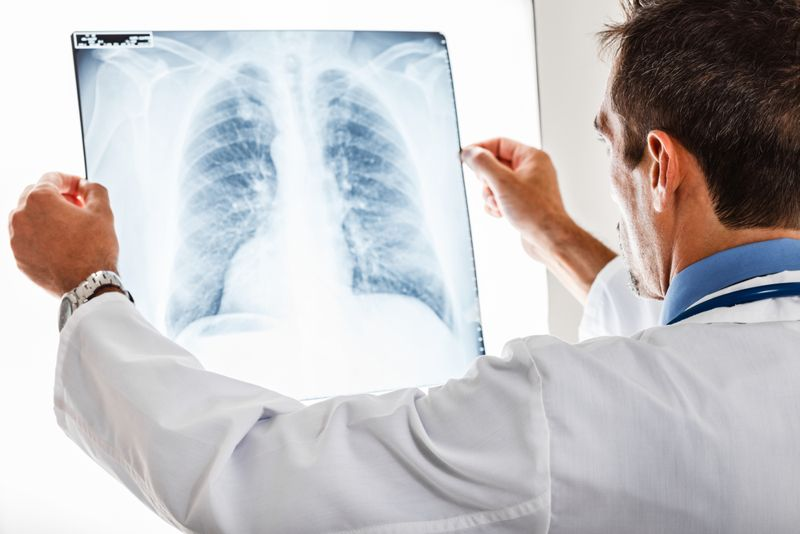 lungs marfan syndrome