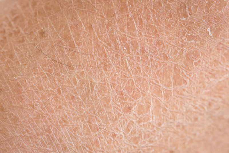 signs of eczema