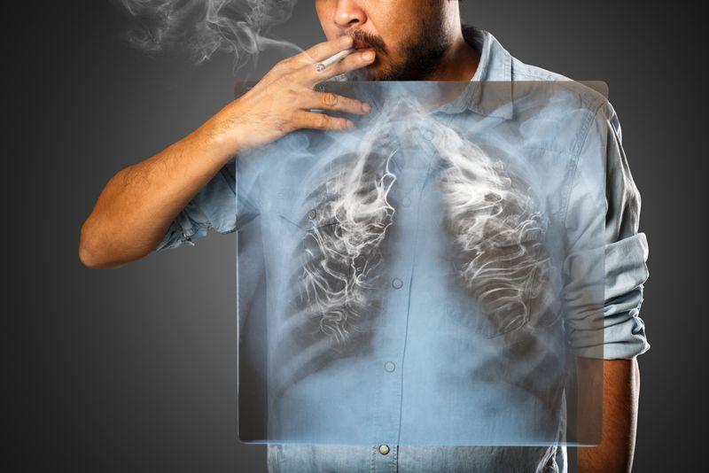 cigarette lung cancer