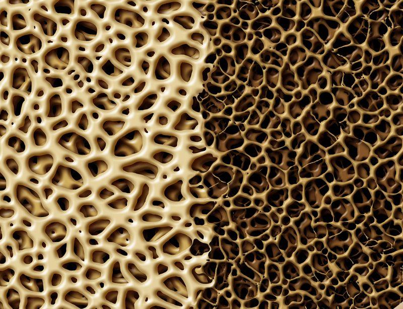 osteoporosis menopause