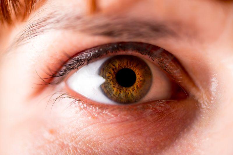 near glaucoma