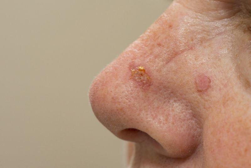 cryosurgery skin cancer