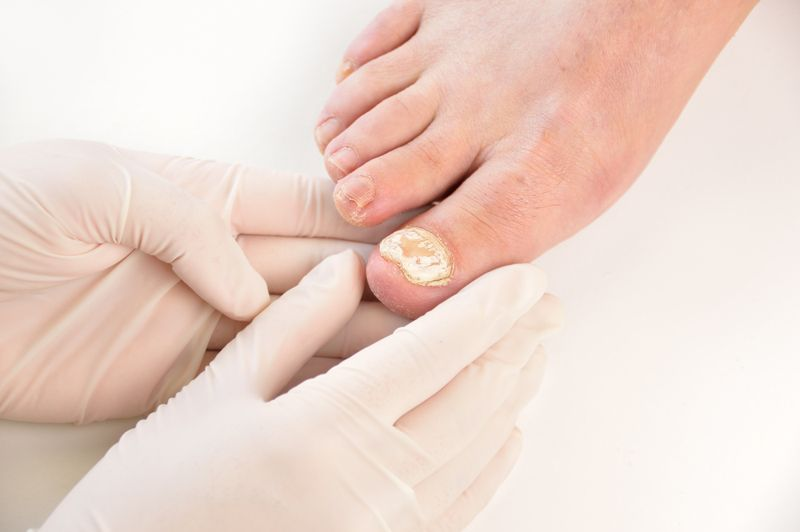 what are the signs of bone cancer