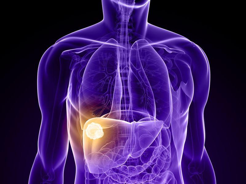 Liver cancer healthy