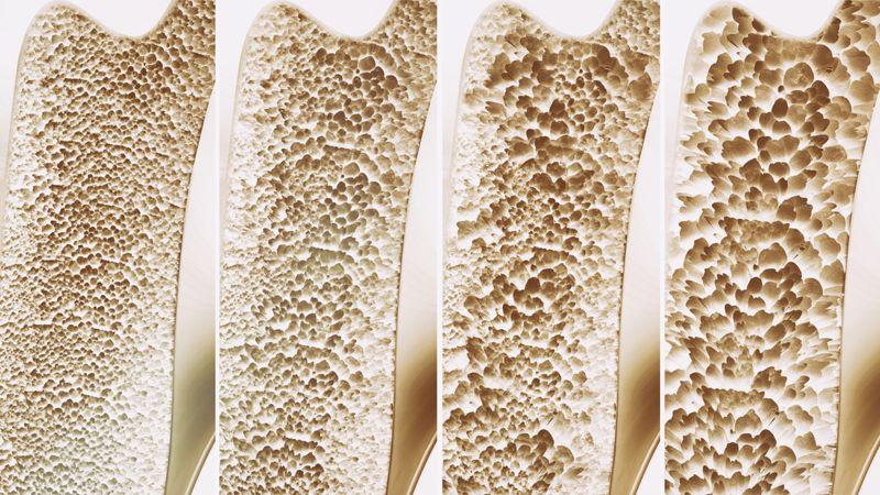 wilson's disease bone