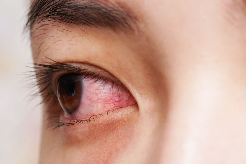 infection glaucoma