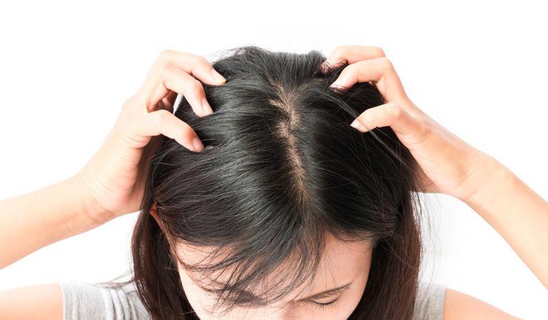 lymph head lice