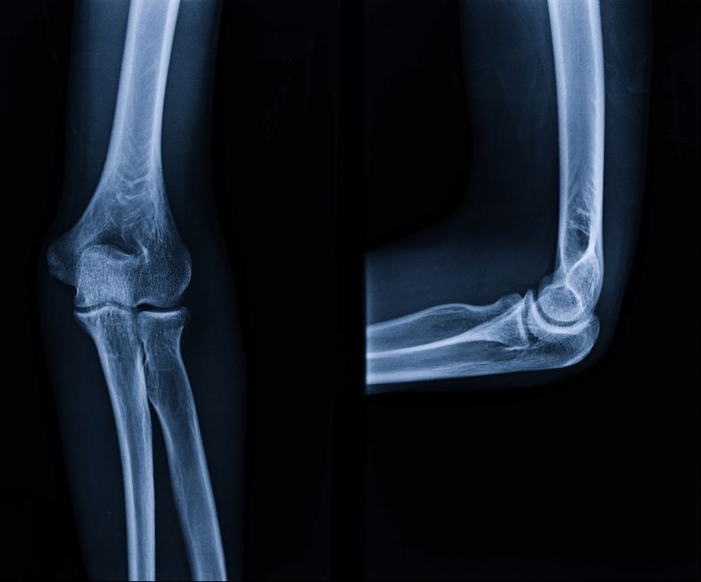 other symptoms bone cancer