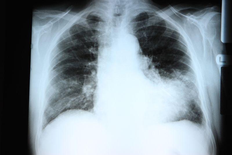 10 Causes of Pneumonia
