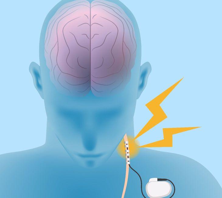 nerves Epilepsy