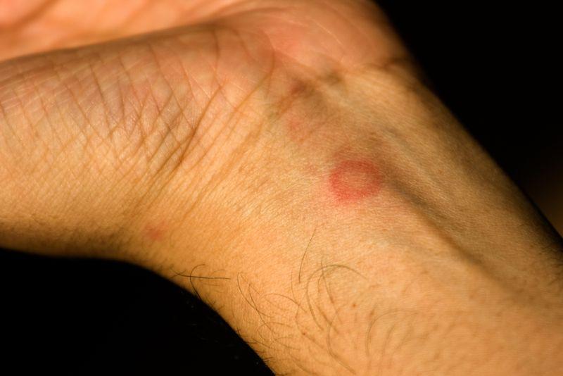 10 Symptoms of Eczema