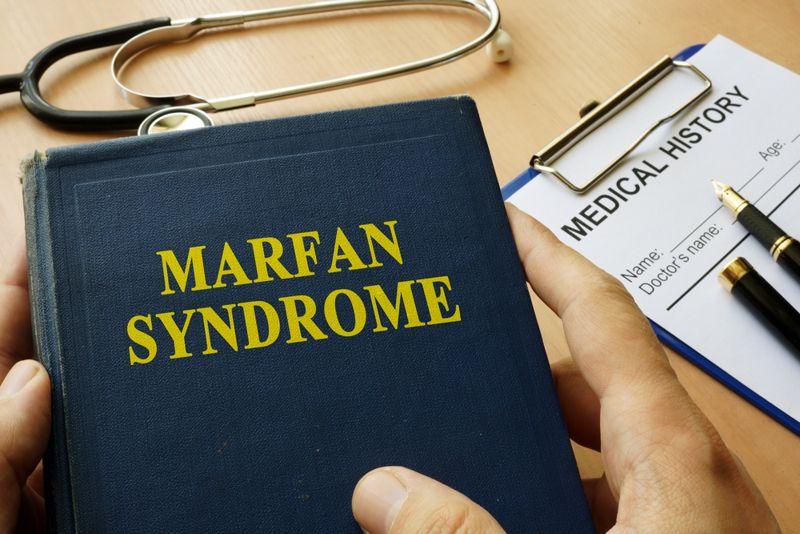 10 Symptoms of Marfan Syndrome