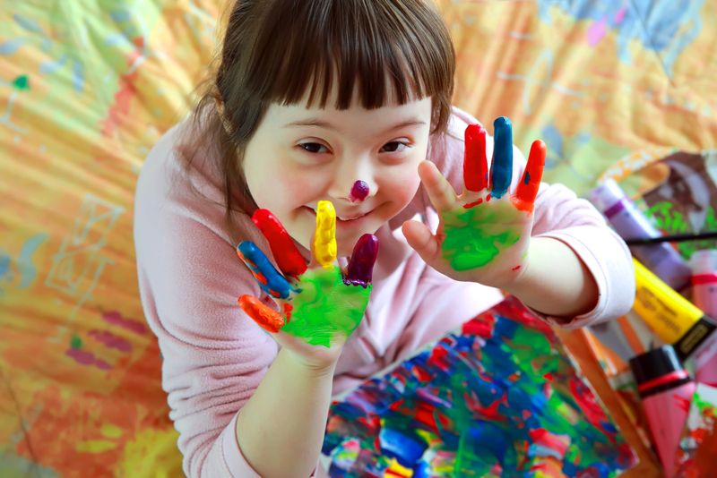 down syndrome signs and symptoms