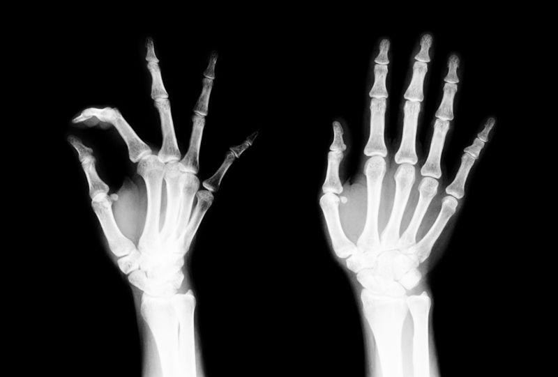 bones neurofibromatosis