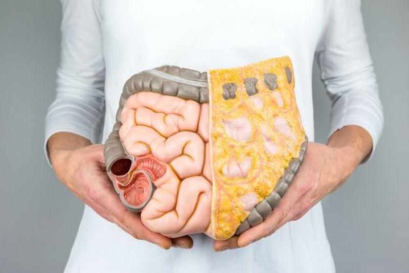 intestine carcinoid tumors