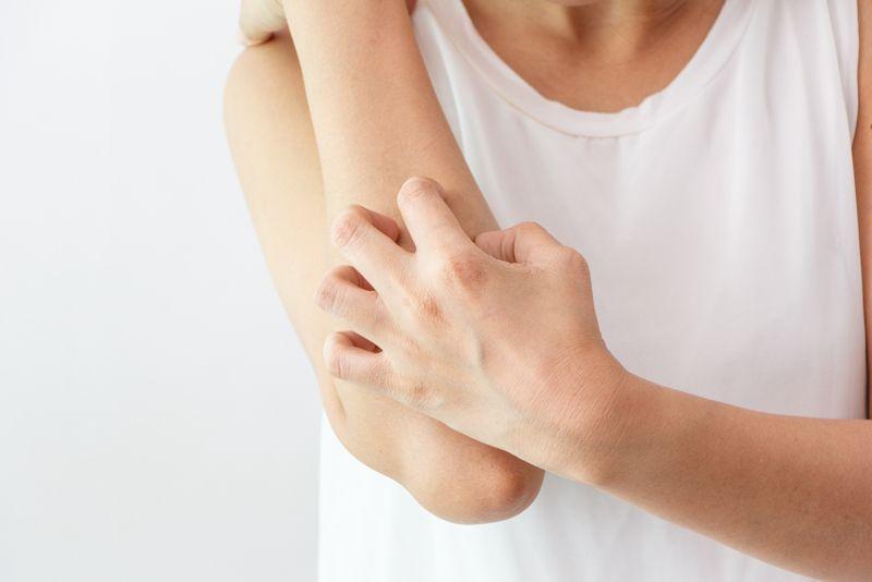 neurofibromatosis itching