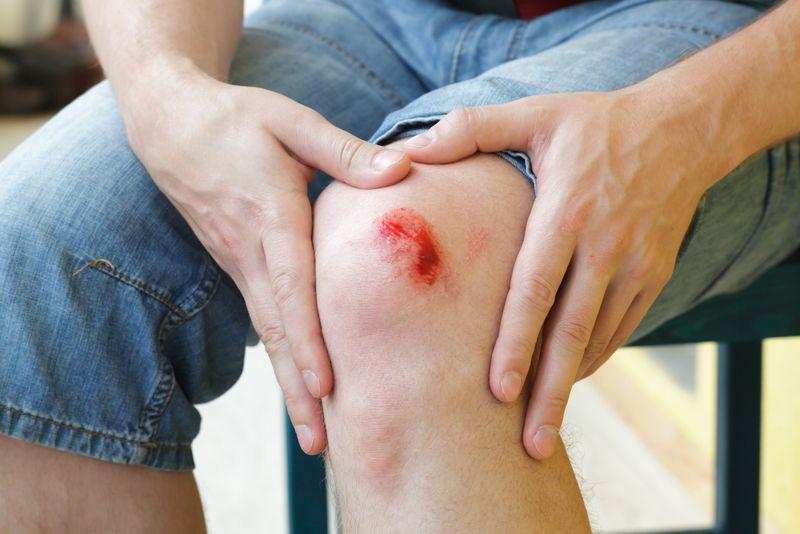 bleeding Acute Myeloid Leukemia