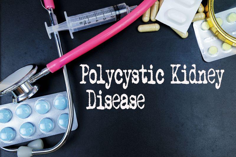 10 Symptoms of Polycystic Kidney Disease